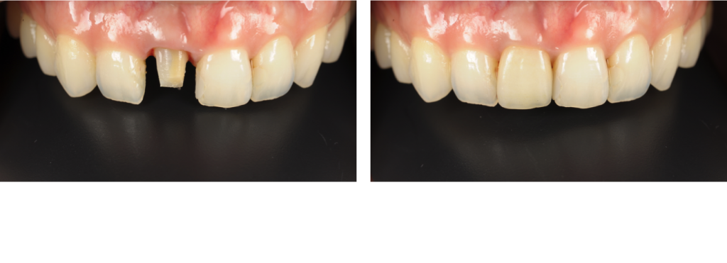 Zirconia all-ceramic