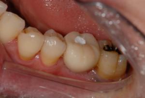 仮歯の印象、セット