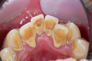 初診時に歯石を取りたい