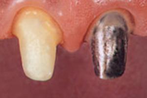 歯が少ない場合は土台(コア)を立てる