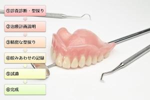 入れ歯ができるまで