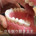 歯科衛生士直伝!フロスの使い方