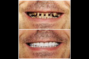差し歯は自分の歯に被せるもの