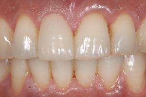 仮歯で歯茎を育てることがある
