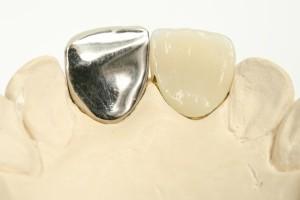 保険の差し歯は金属を使用する