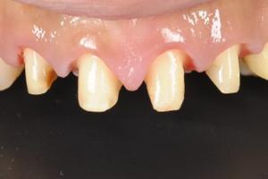 差し歯を支える土台が重要