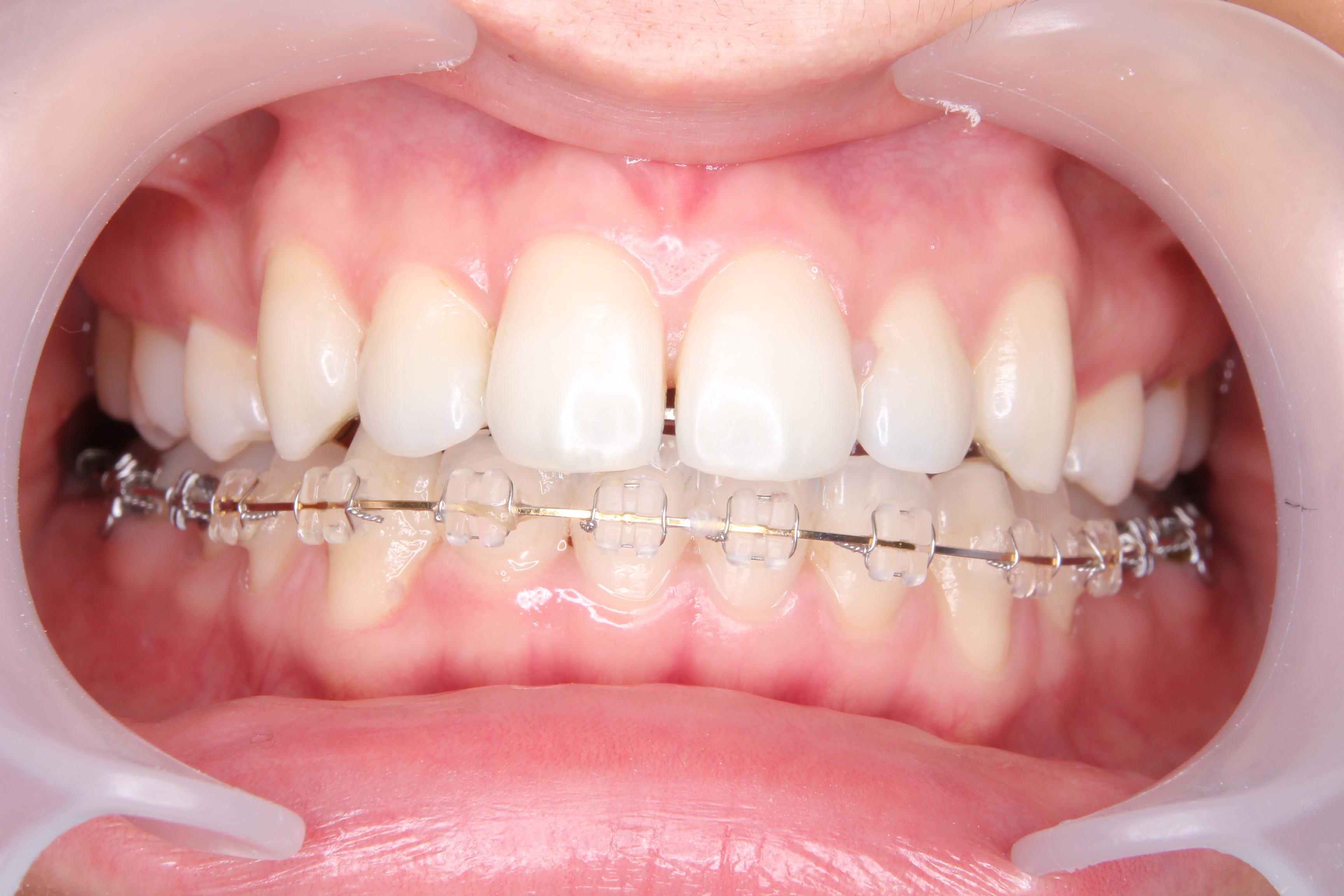 舌側矯正体験記