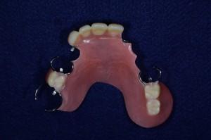 上顎7歯欠損保険部分入れ歯