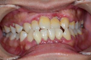 歯茎が炎症を起こして差し歯は作れない