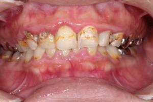 虫歯が広く大きい場合は差し歯になる