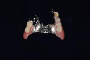 上顎6歯欠損自費部分入れ歯