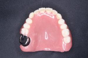 上顎13歯欠損保険部分入れ歯
