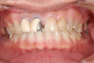 保険の前歯の差し歯は金属とプラスチックで出来ている