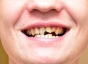 抜歯で歯並びが変わる