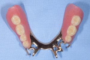 下顎7歯欠損自費白金加金部分入れ歯