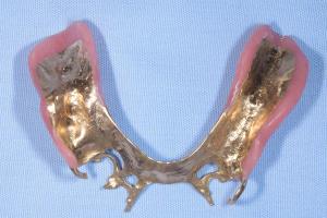 金の入れ歯