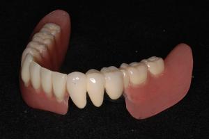 下顎コーヌスクローネ3本自費部分入れ歯