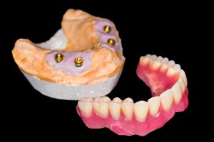 インプラント4本オーバーデンチャーアタッチメント自費入れ歯