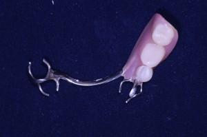下顎3歯欠損保険部分入れ歯