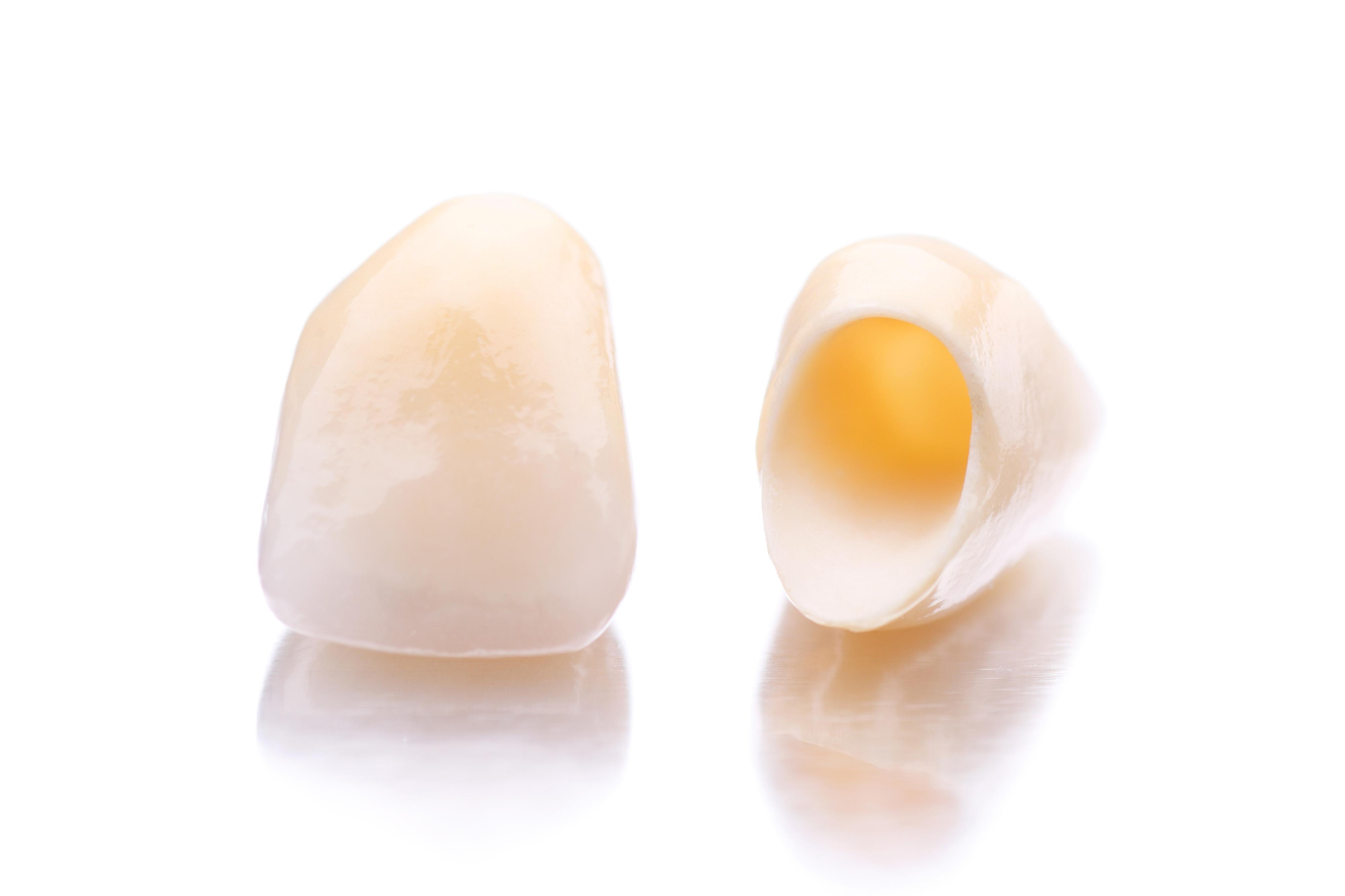 セラミックの差し歯