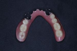 下顎7歯欠損保険部分入れ歯