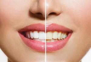 セラミックの差し歯は変色しない