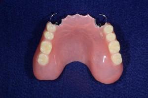 上顎8歯欠損保険部分入れ歯