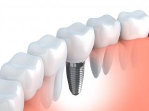 差し歯とインプラントは異なるもの