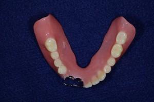 下顎11歯欠損保険部分入れ歯