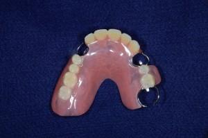 上顎11歯欠損保険部分入れ歯