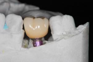 インプラントは失った歯の代わりに審美・機能回復するもの