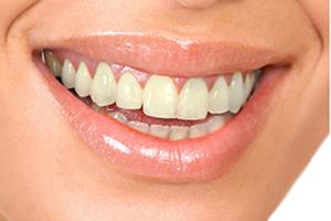 歯のそのものの色が元々黄色い