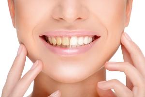 歯の黄ばみを解決する方法