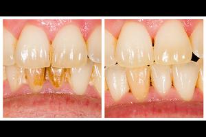 歯の黄ばみを歯医者のクリーニングで落とす