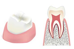 虫歯の進行具合c0