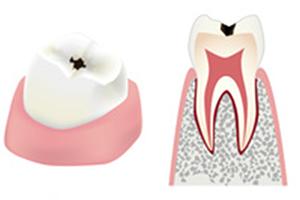 虫歯の進行具合c1