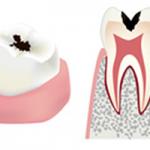虫歯の進行具合c2