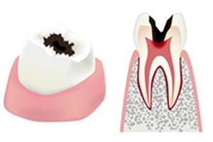 虫歯の進行具合c3