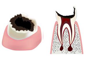 虫歯の進行具合c4