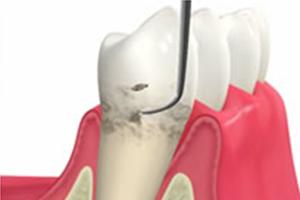 歯周病の治療の後に歯が痛むことがある