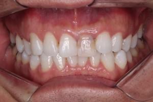 歯茎の上に健康的な歯が残っている