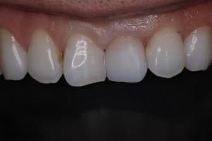 セラミックの差し歯の試適
