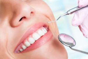 歯式・歯周検査