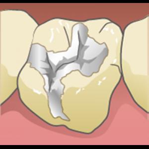 銀歯との間にすき間がある