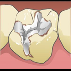 歯と銀歯を接着するセメントの劣化