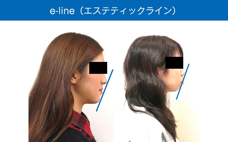 e-line(エステティックライン)