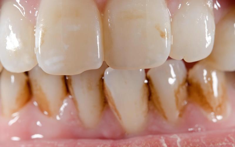 歯に色がつきやすい