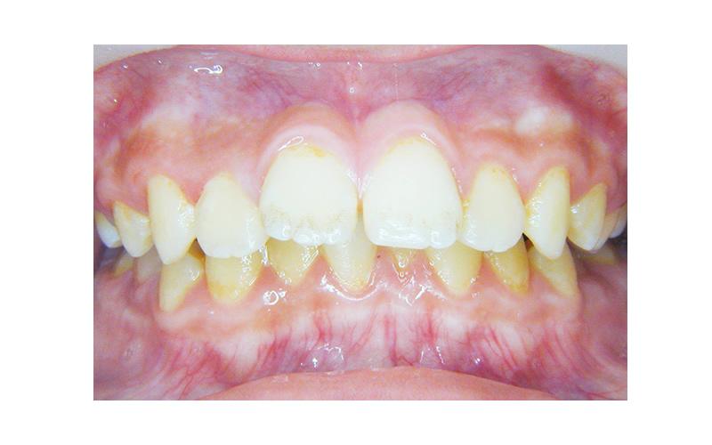 出っ歯のおすすめの治療方法とその特徴