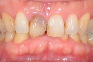 神経がない歯を白く出来る