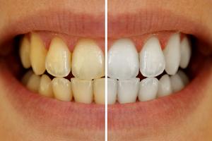 急に変色してきた歯も白く出来る